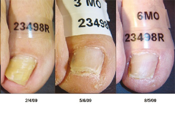 Toenail Fungus Treatment Results Pictures From Clinical Studies Before And After Using The PinPointe Foot Laser