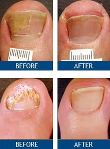nail fungus pictures, Before and After toenail fungus laser treatment